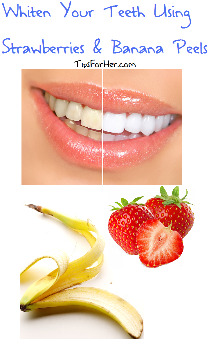 banana peel toothpaste as whitening How to whiten your teeth with banana peel  you can use your regular toothpaste if you like 5  teeth whitening with banana peel will not provide an.