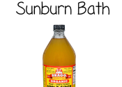 ACV Sunburn Bath