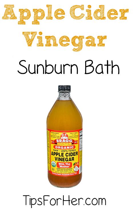 ACV Sunburn Bath