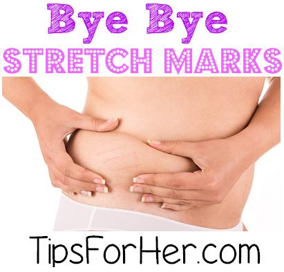 Bye Bye Stretch Marks