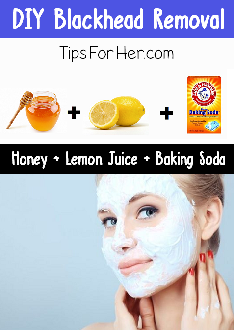 blackhead removal tips - photo #12