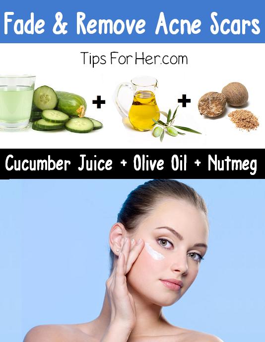 Fade & Remove Acne Scars