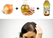 Home Remedy for Bald Spots