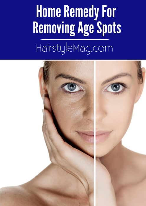 Home Remedy for Removing Age Spots