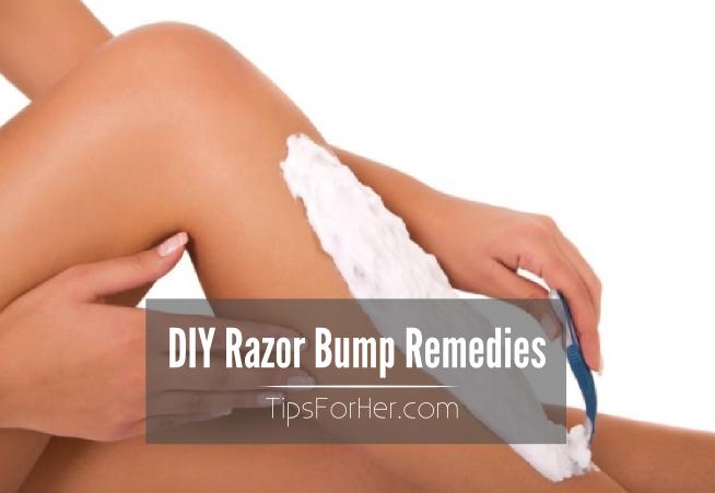 DIY Razor Bump Remedies