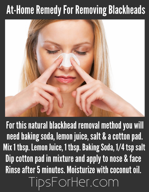 At-Home Remedy for Removing Blackheads