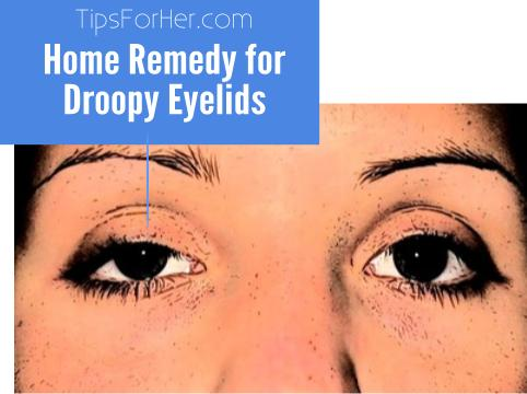 How to Fix Your Droopy Eyelids without Surgery